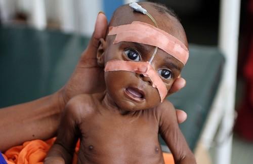 Somalie: 15 mai 2015, un enfant malade de malnutrition
