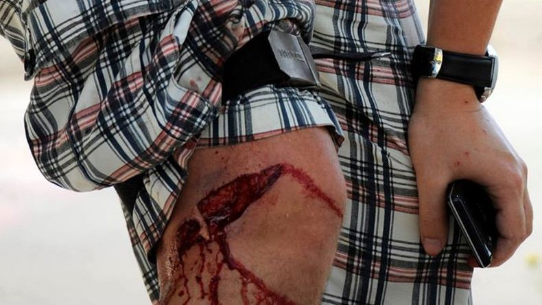 La jambe blessée d'Alexander Gayuk
