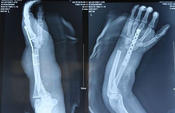 Chine : Pour sauver la main d'un homme, les médecins la greffent à son pied