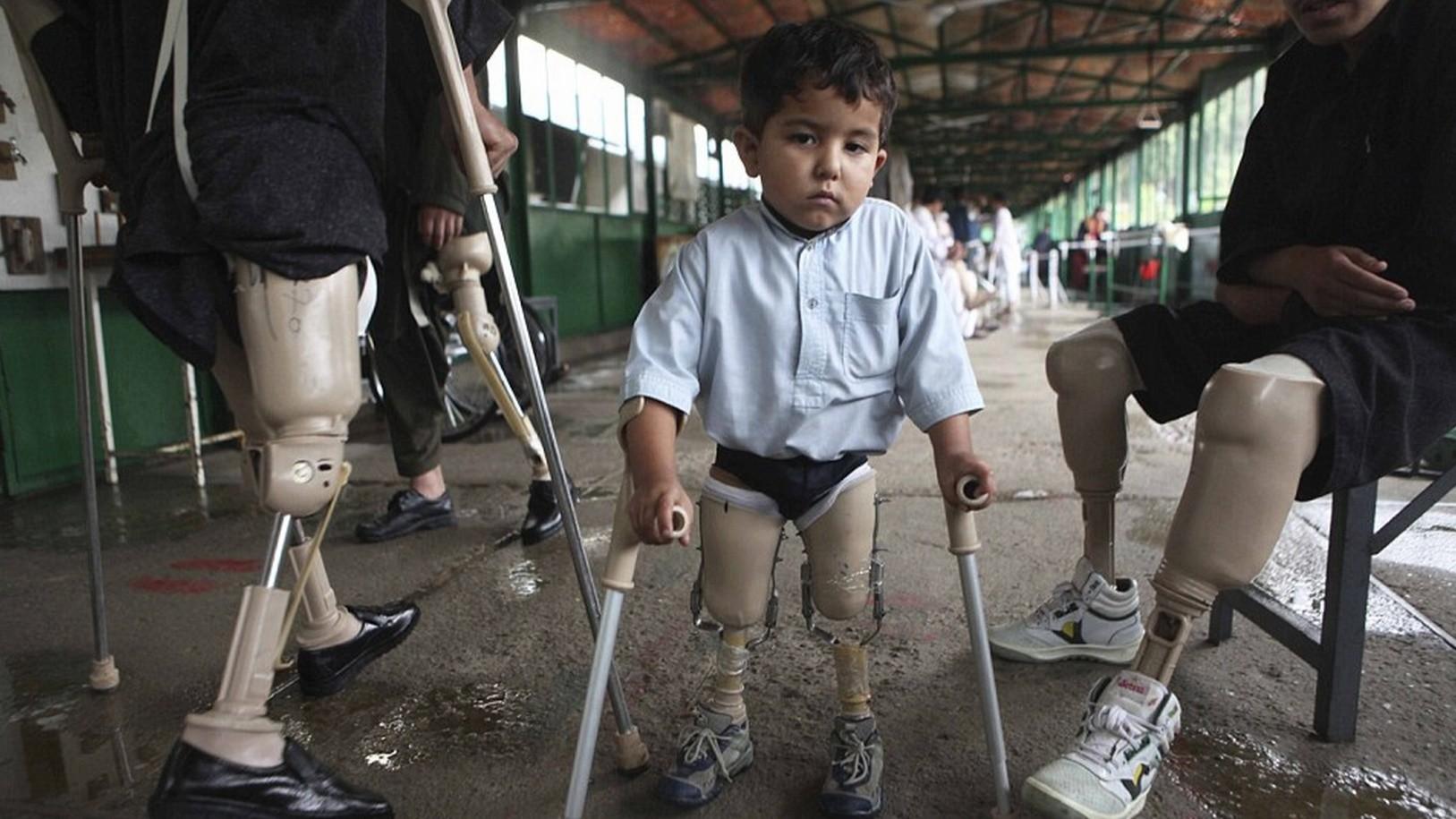 Les enfants continuent de payer le plus lourd tribut aux mines antipersonnel en Afghanistan (PHOTOS)