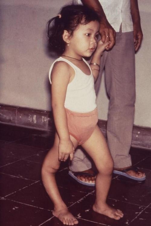 Une petite fille atteinte par la polio