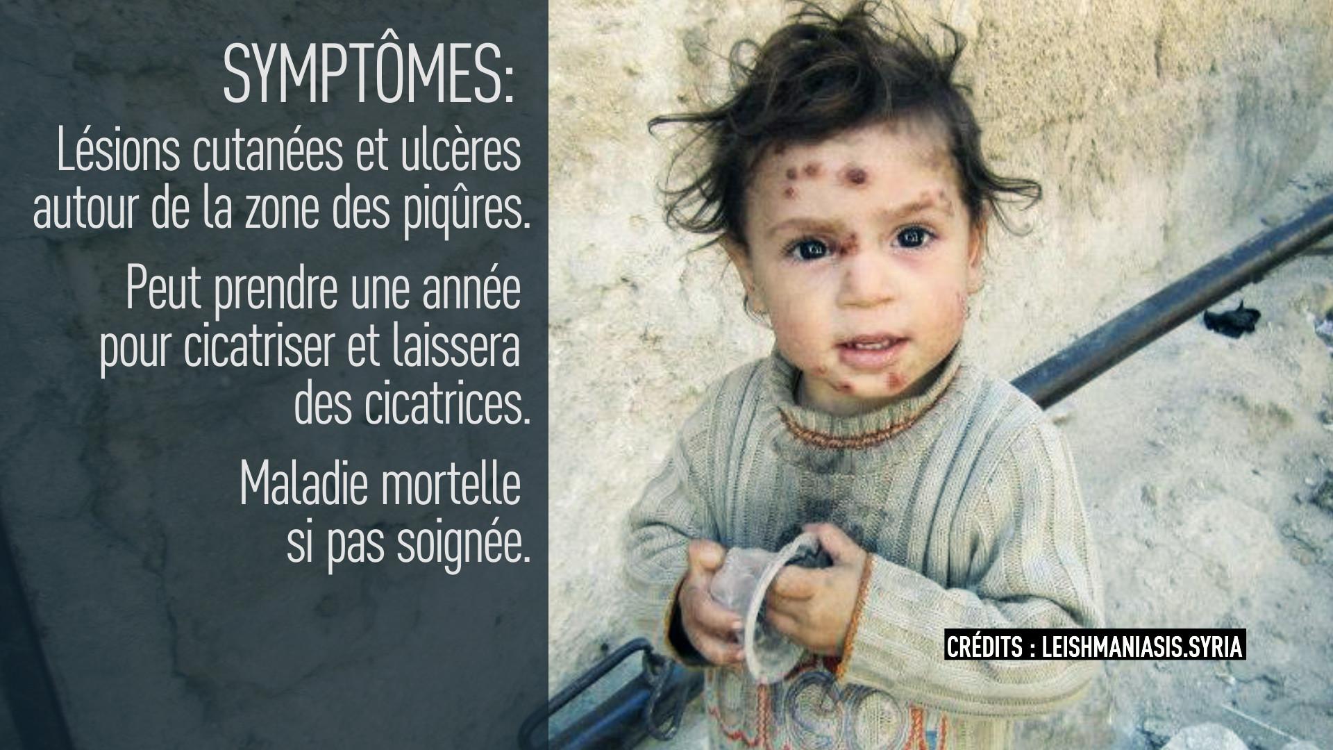 Syrie : alerte à la maladie dévoreuse de chair (IMAGES PERTURBANTES)