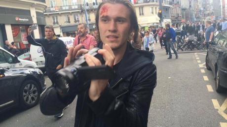 Euro 2016 : des journalistes frappés, volés, quand la presse est prise pour cible (VIDEOS)