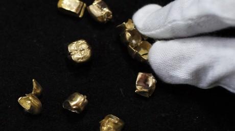 Braquage à l'azerbaïdjanaise : 38 dents en or volées de l'appartement d'un dentiste à Bakou