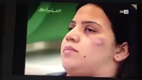 Maroc : quand la TV apprend aux femmes battues à dissimuler leurs hématomes, ça ne passe pas (VIDEO)