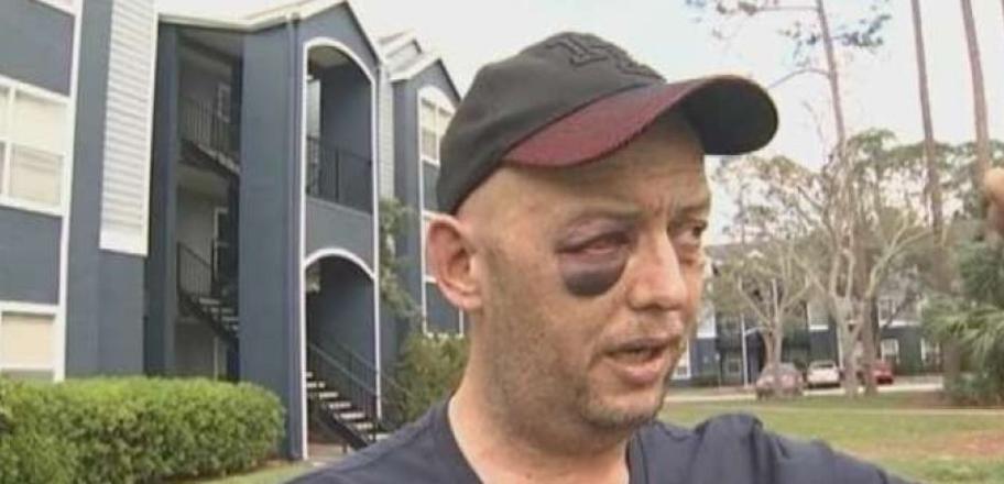 Un vétéran américain handicapé battu pour avoir défendu une tortue massacrée par trois hommes