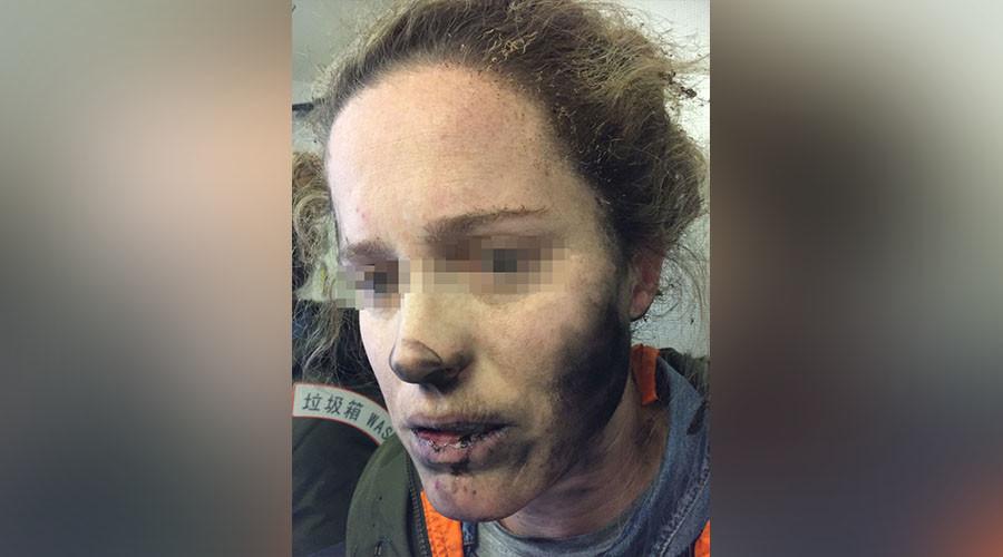 Des écouteurs explosent en plein vol et brûlent une femme au visage (PHOTOS)