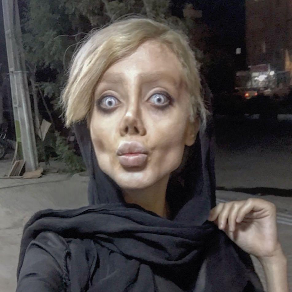 D'Angelina Jolie à «zombie» ? Les troublants résultats de la chirurgie esthétique d'une Iranienne