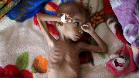 Un garçon sous-alimenté dans un centre de traitement de la malnutrition à l'hôpital al-Sabeen de Sanaa, au Yémen, le 6 octobre 2018 (image d'illustration).