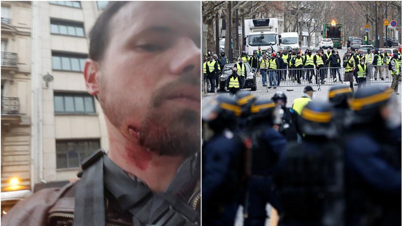 """Résultat de recherche d'images pour """"blessés gilet jaune 2018"""""""