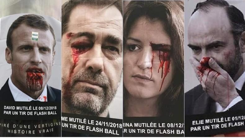 Une campagne d'affichage choc en l'honneur des Gilets jaunes mutilés (PHOTOS)