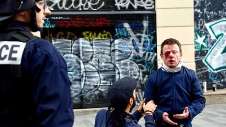 Le militant SUD, Laurent Théron a été touché à l'œil le 15 septembre 2016 à Paris lors d'une manifestation contre la loi travail.