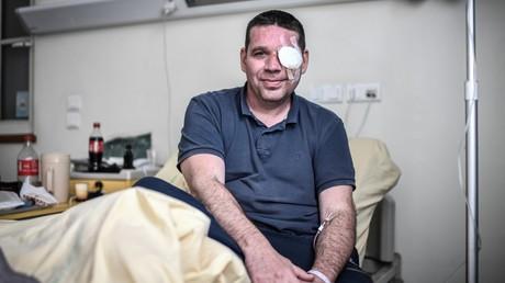 David Breidenstein, éborgné par un projectile non identifié le 16 mars 2019 lors d'un acte des Gilets jaunes.