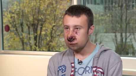 Julien, journaliste indépendant blessé au visage place d'Italie, témoigne pour RT France.