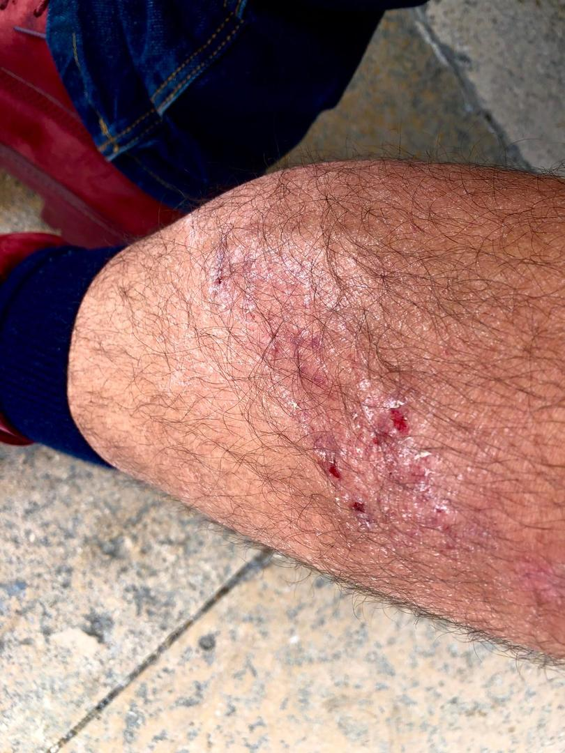 Des journalistes blessés lors de la manifestation des soignants à Paris