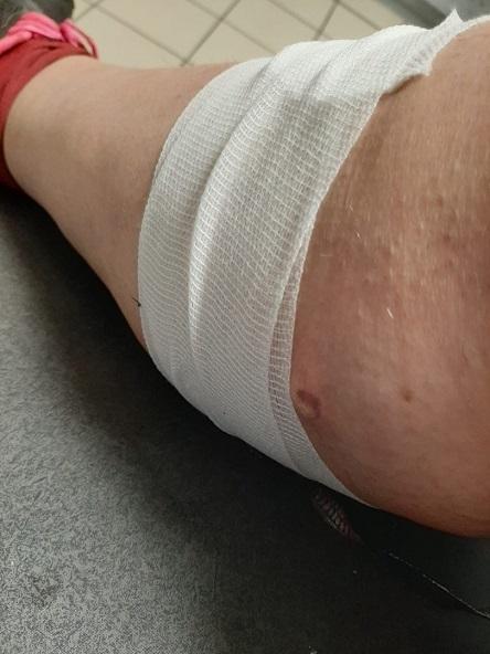 Gilets jaunes blessés à vie : Valérie