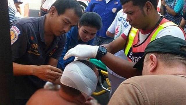 Phuket News: Российский турист в Таиланде лишился уха, покупая рыбу
