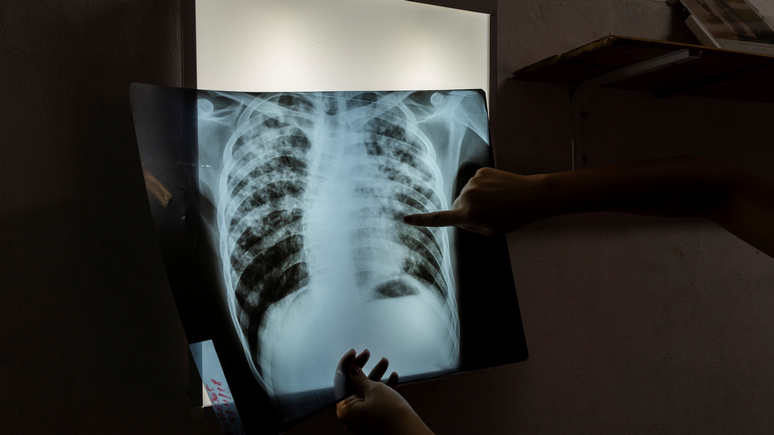 CNBC: следующий удар по человечеству — после коронавируса миллионам людей грозит туберкулёз