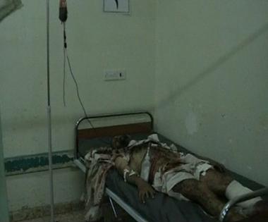 أحد المصابين في التفجير الانتحاري