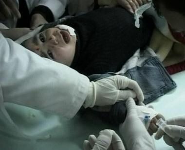 روسيا تمد يد العون لمعالجة أطفال غزة
