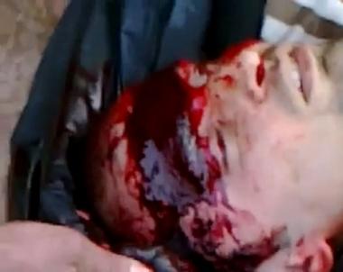 جثث القتلى ودماء منتشرة في مدينة درعا السورية