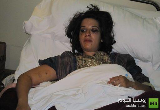 وزير الداخلية المصري ينفي استخدام الخرطوش ومصابة تؤكد ما أعلنته جمعية أطباء عيون الثورة