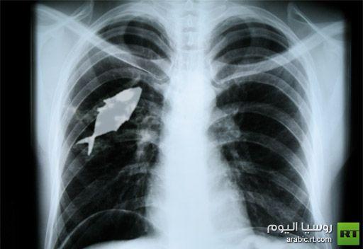 في الهند.. جراحون يستخرجون سمكة حية من رئة صبي