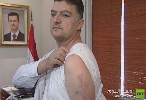 تعرض احد افراد طاقم الطائرة السورية المحتجزة في تركيا للاصابات