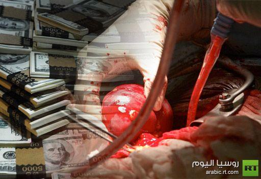 مصر في مقدمة الدول المصدرة  للأعضاء البشرية والسعودية من أوائل مستورديها والسمسار إسرائيلي