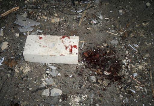 جريح في انفجار عبوة ناسفة في نالتشيك بشمال القوقاز