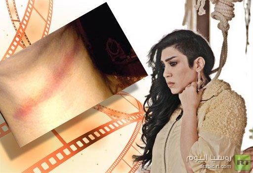 فاطمة عبدالرحيم تنجو من الموت بأعجوبة أثناء تصويرها مشهد الاعدام