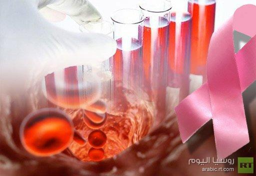 طريق جديد لعلاج السرطان بالخلايا المعدلة وراثيا يوقف انتشار المرض