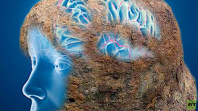 الصدأ يعتلي مخ الإنسان بالمعنى الحرفي
