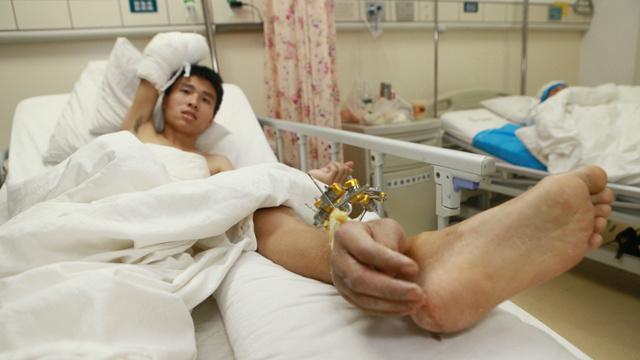 الأطباء يخيطون كفا مقطوعة بساق المصاب للحفاظ على سلامتها