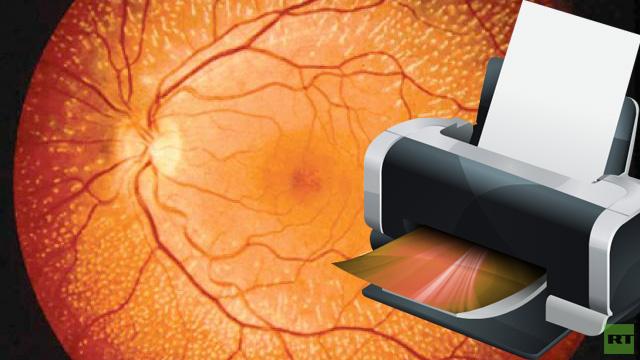 علماء بريطانيون يطبعون خلايا لشبكية العين