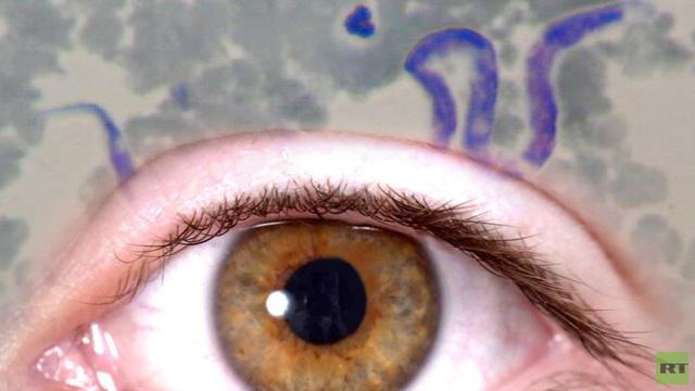 استئصال دودة طولها 12 سم من عين امرأة
