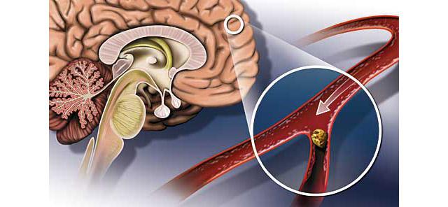 نجم البحر يساعد في علاج الجلطة الدماغية
