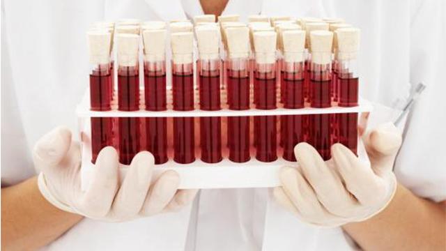 العلماء يبرهنون عدم فاعلية الحمية المبنية على فصيلة الدم