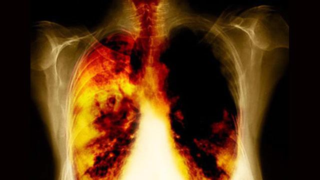 الولايات المتحدة... توسيع قائمة الأمراض التي يسببها التدخين