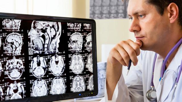 الاسبيرين يثبط انتشار ورم العصب السمعي