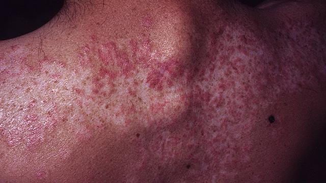 انسان النياندرتال مصدر الاصابة بالأمراض السرطانية