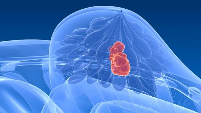 4 فبراير- اليوم العالمي لمكافحة السرطان