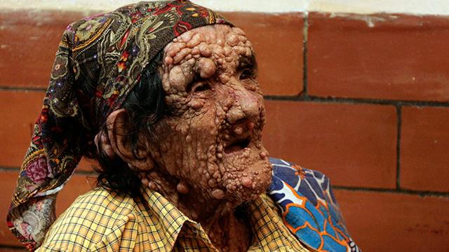 اكتشاف أقدم مرض أصاب البشر