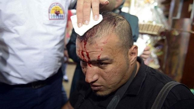 الشرطة الإسرائيلية تعتقل وتصيب العديد من الفلسطينيين خلال تفريقها لمسيرة خرجت إحياء ليوم الأرض