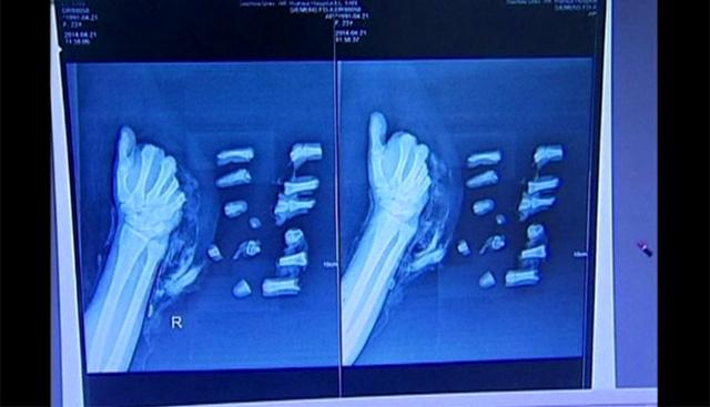 جراحون صينيون يعيدون تجميع يد مقطّعة (فيديو)