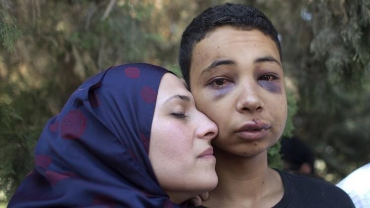 إسرائيل تفرج عن أبو خضير وتضعه رهن الإقامة الجبرية