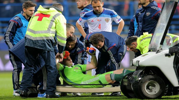 إلقاء القبض على المشجع المونتينيغري المتسبب بإصابة حارس المرمى الروسي