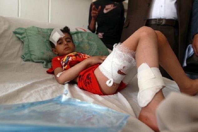 اليونيسيف: مقتل 62 طفلا منذ اندلاع المعارك باليمن