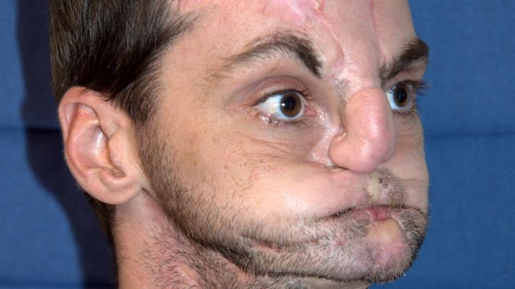 أمريكي يخضع لعملية زرع وجه جديد بعد 30 عملية فاشلة