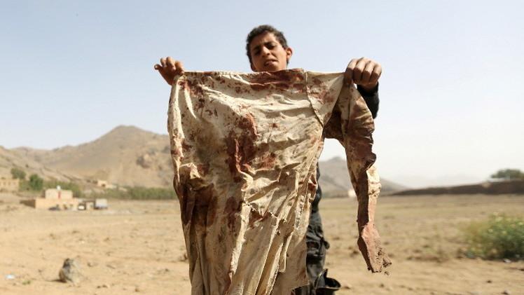اليونيسف: مقتل 279 طفلا باليمن منذ 26 مارس/آذار